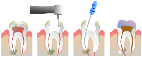 800px-Root_Canal_Illustration_Molar.svg