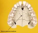 suturapalatinamediana[1]