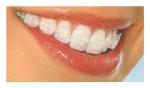 aparelho de safira | ortodontia safira