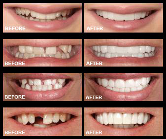 snap-on-smile-before-after