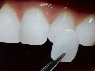 Dentes Escurecidos Apos Tratamento De Canal O Que Fazer Eduardo