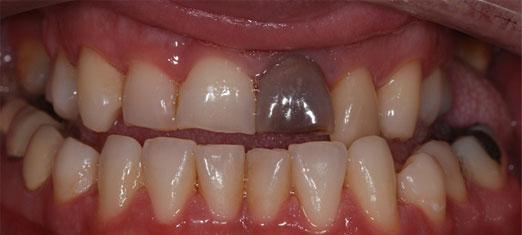 Canal de raiz Pearland – Pearland Dentist Info