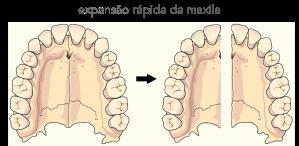 RPE-MAXILLA