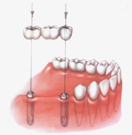 implante14