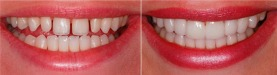 Lentes-de-contato-dental-003